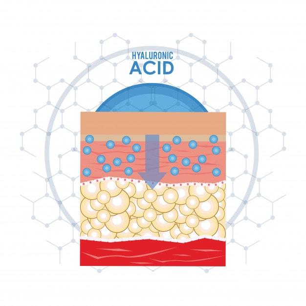 اسید هیالورونیک
